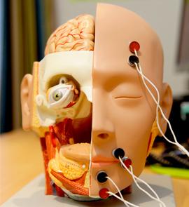 Neurological Speech and Language